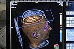 Мозг человека вырабатывает опиоиды и борется с чувством обиды